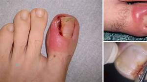 How To Fix Ingrown Toenail At Home Without Surgery