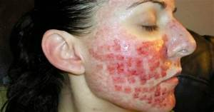 Severe Acne Pictures