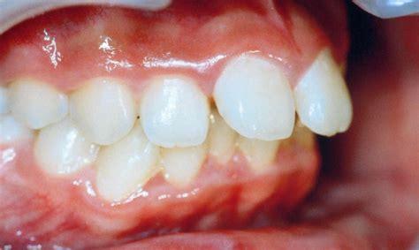 出っ歯 に対する画像結果