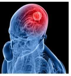 bruciori alla testa tumore al cervello