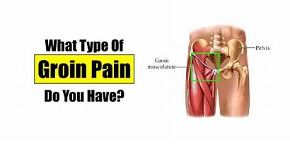 Groin Pain Muscle Kind Pelvic Muscles Inguinal