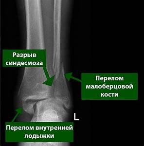 Тазобедренный сустав боль при растяжке шпагат