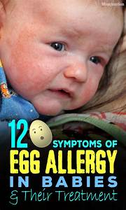 12 Symptoms Of Egg Allergy In Babies And Their Treatment