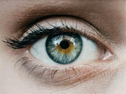 Eye Eyes Migraine Ocular Ojos Dry Self