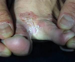 Лечение грибка на ноге в домашних условиях