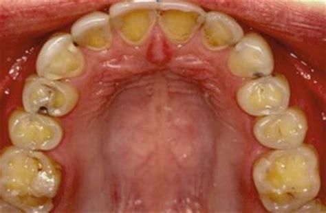 effect eetstoornis op je tanden de psychologie van