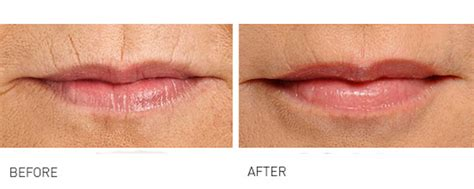 Anita East Lip Lines - improve skin texture and quality