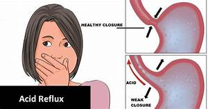 Natural Treatments And Remedies For Acid Reflux   Human N