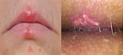 Is It Possible To Kill Herpes Simplex ?