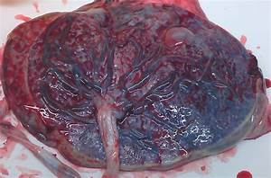 File Placenta  Donated By Volunteer Woman For Research Jpg