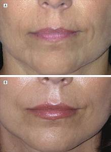 A New Classification Of Lip Zones To Customize Injectable Lip Augmentation