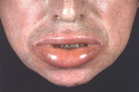symptome urtikaria nesselsucht allum