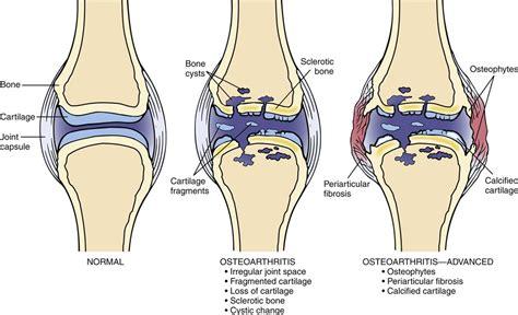 Degenerative osteoarthritic changes