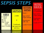 Difference Between Sepsis and Septic Shock   Causes and ...