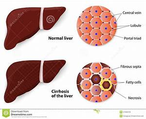 Healthy Liver And Cirrhosis Stock Vector