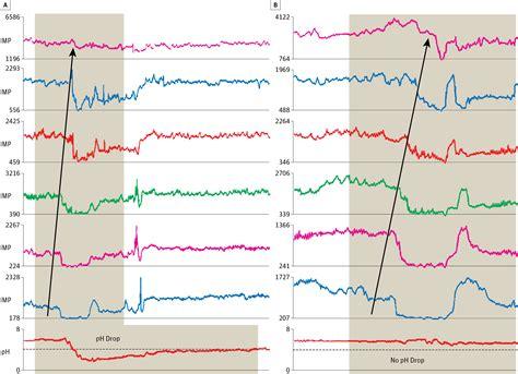 Gastroesophageal Reflux In Infants Gastroenterology