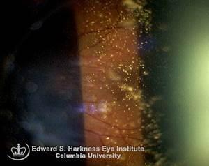 Vitreous & Retina-Asteroid Hyalosis