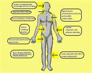 Kidney Failure Signs and Symptoms
