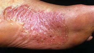 Palmoplantar psoriasis symptoms