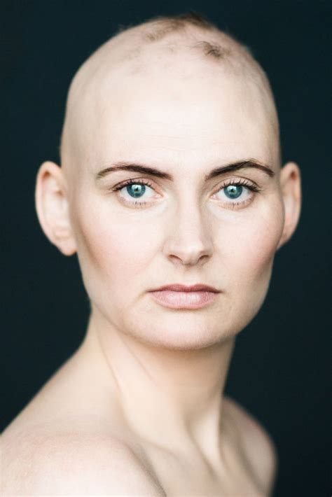Women With Alopecia Captured In Beautiful Pictures ...