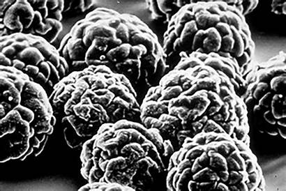 Virus Polio Electron Poliovirus Microscope Scan Through