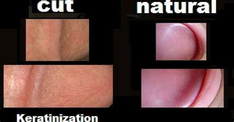 Cytotec C Big Difference Natural Vs Unnatural Look At How The
