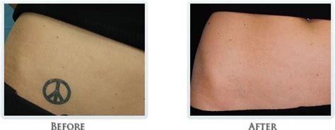 Laser Tattoo Removal Portland tattoo removal process portland laser tattoo removal 650 x 254 · jpeg