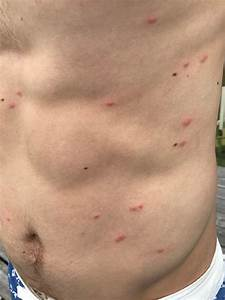 Swimmers Itch & Cercarial Dermatitis - Causes, Prevention, Treatment Cercarial Dermatitis