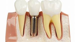 How To Best Take Care Of Your New Dental Implants