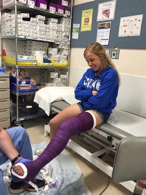 Beautiful Stumps And Leg Cast — Happy Llc Girl