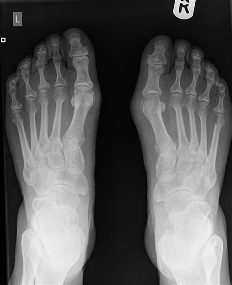 Psoriatic arthritis toe pain