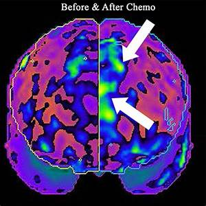 Demand a way to diagnose chemo brain