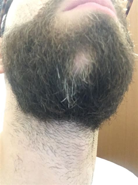OT (?) Should i start worring about this? Beard alopecia