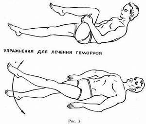 Физическое упражнение от геморроя