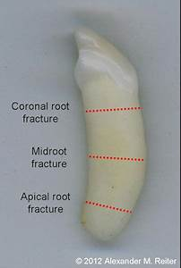 Tooth  Root Remnant