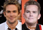 Mark McGrath Plastic Surgery: Before and After Photos ...