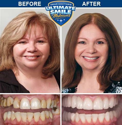 Smile Makeover Contest Winner - Debra - Cosmetic Dental ...