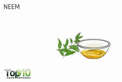 Skin Remedies Neem Itchy Top10homeremedies Dog Deal