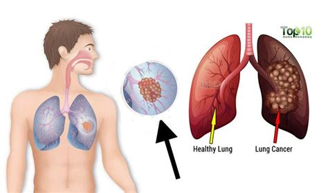 10 Signs And Symptoms Of Lung Cancer You Should Not Ignore. Nauseous Signs. Mobile Logo. Light Banners. Math Science Lettering. Neomax Banners. Line App Logo. Cafe Paris Wall Murals. Mithai Banners