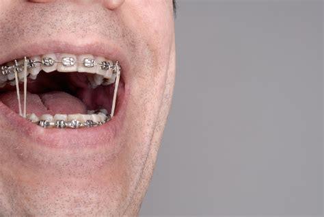 elastics theyre pulling   carlyle orthodontics
