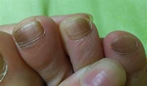 Дают ли больничный с грибком ногтей