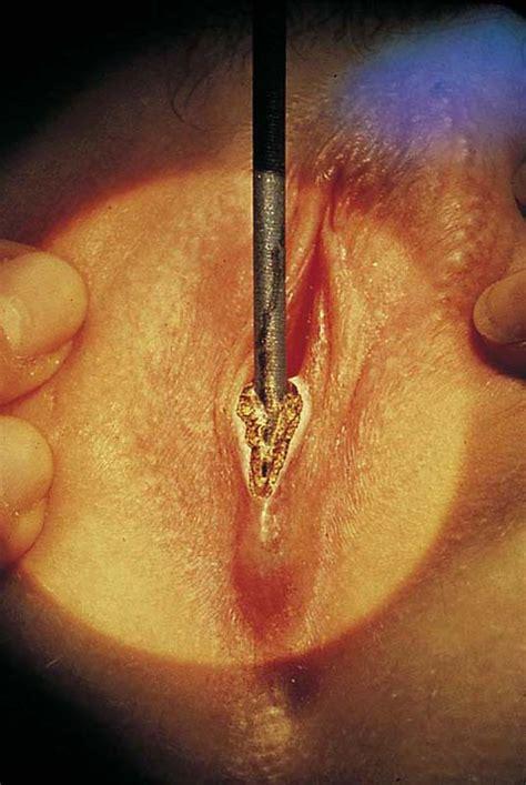 Vulvar lesions diagnostic evaluation uptodate jpg 536x800