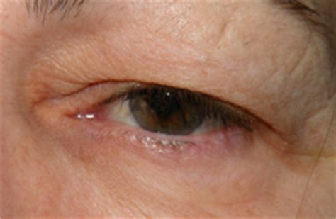 diagnosed   blocked tear duct  eyelid doctors