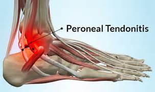 Peroneal Tendinopathy
