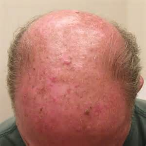 This is captain cutaneum squamous cell skin Cancer on the scalp. Skin Cancer