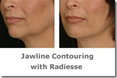 Jaw Line Contouring