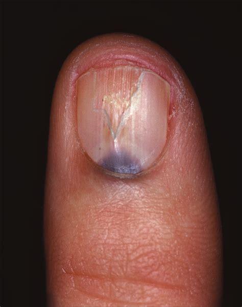 blue gray subungual discolorationquiz case