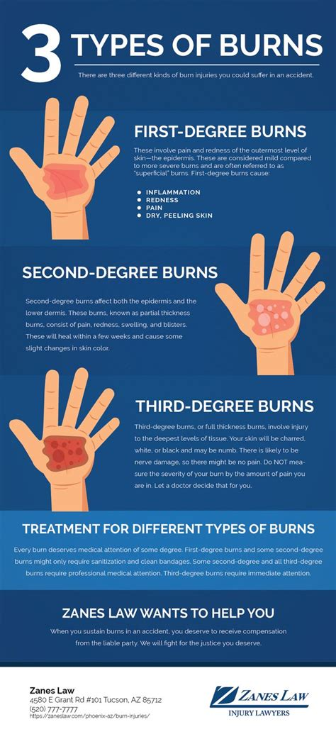 Different types of burn injuries   Burn injury, Types of ...