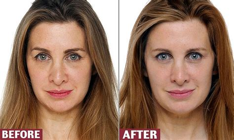 I wiped FIVE YEARS off my face in EIGHT WEEKS (thanks to