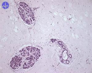 The gallery for --> Lesser Vestibular Glands